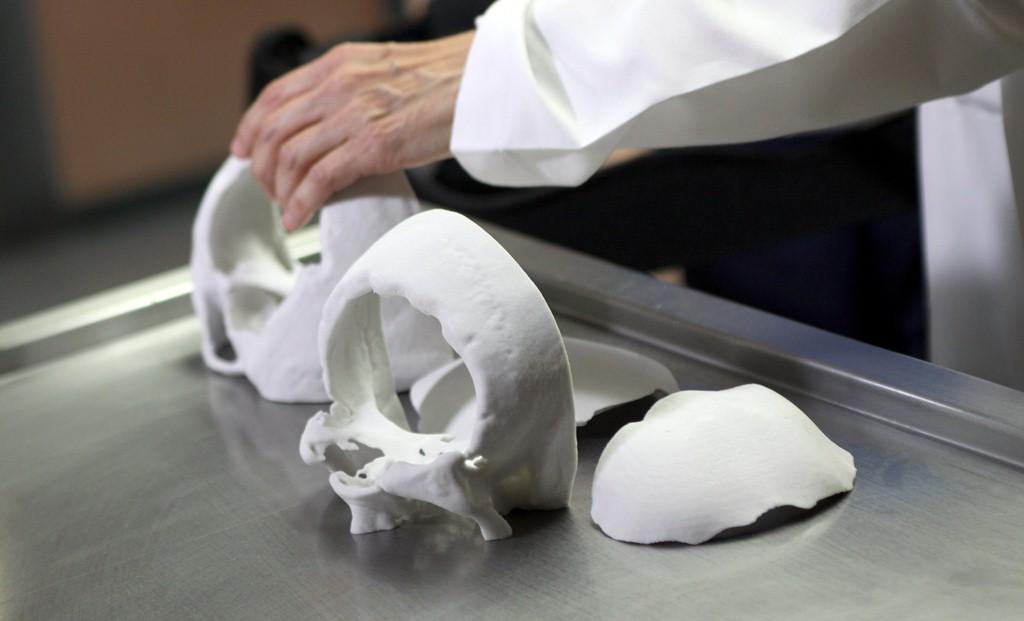 Realiza IMSS cirugías de reconstrucción craneofacial con prótesis de modelos tridimensionales